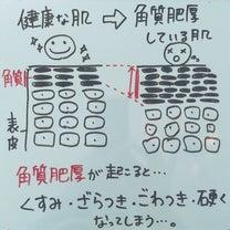 【①角質肥厚】ニキビが出来る5段階メカニズム!ニキビを改善する5段階メカニズム!の記事に添付されている画像