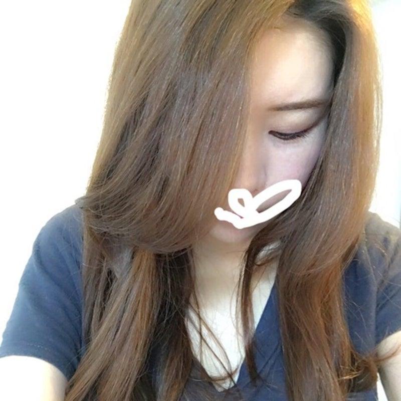 白髪 シナール