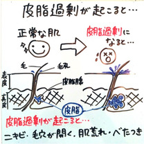 【②皮脂分泌】ニキビが出来る5段階メカニズム♡ニキビを改善する5段階メカニズム♡の記事に添付されている画像