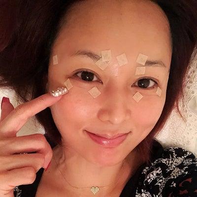 寝ている間美容「円皮鍼」の記事に添付されている画像