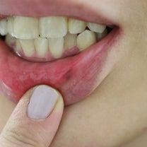 アトピーの方や、リップをよく使う方に多い、唇のほくろの治療の記事に添付されている画像
