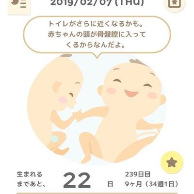 34w1d 妊婦検診9回目の記事に添付されている画像