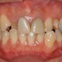 歯科恐怖症を克服しました。《歯科恐怖症・審美歯科・セラミック治療はマキデンタルオの記事に添付されている画像