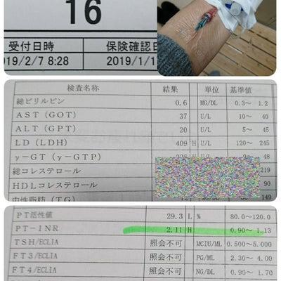 造影CT検査と胃内視鏡検査の記事に添付されている画像