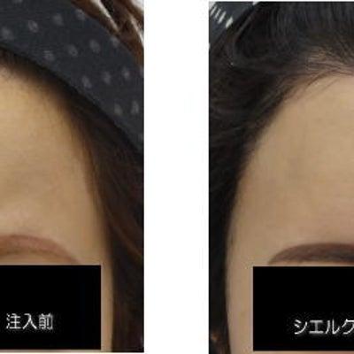 額ヒアルロン酸注入 症例写真の記事に添付されている画像