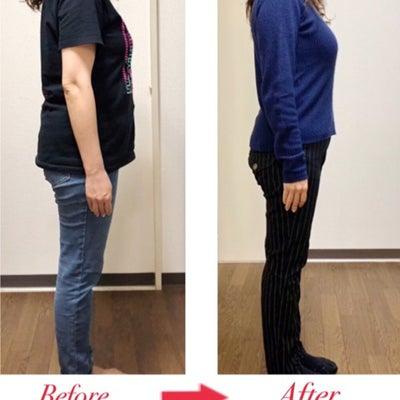 【お写真あり】3ヶ月で下腹が14センチ小さくなりましたの記事に添付されている画像