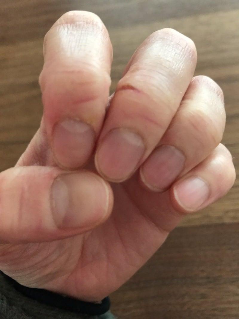 割れ 指 治し 方 ぱっくり 足の指の間のぱっくり割れ・ジュクジュク=趾間型水虫の症状と治し方