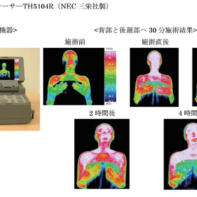 深部加温療法の記事に添付されている画像