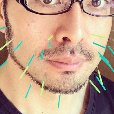 顔の鍼≠美容鍼の記事に添付されている画像