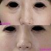 目袋VSベビーコラーゲンの画像