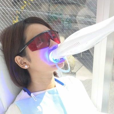 期間限定メニュー✧【写真の加工不要!美歯&小顔プラン】の記事に添付されている画像