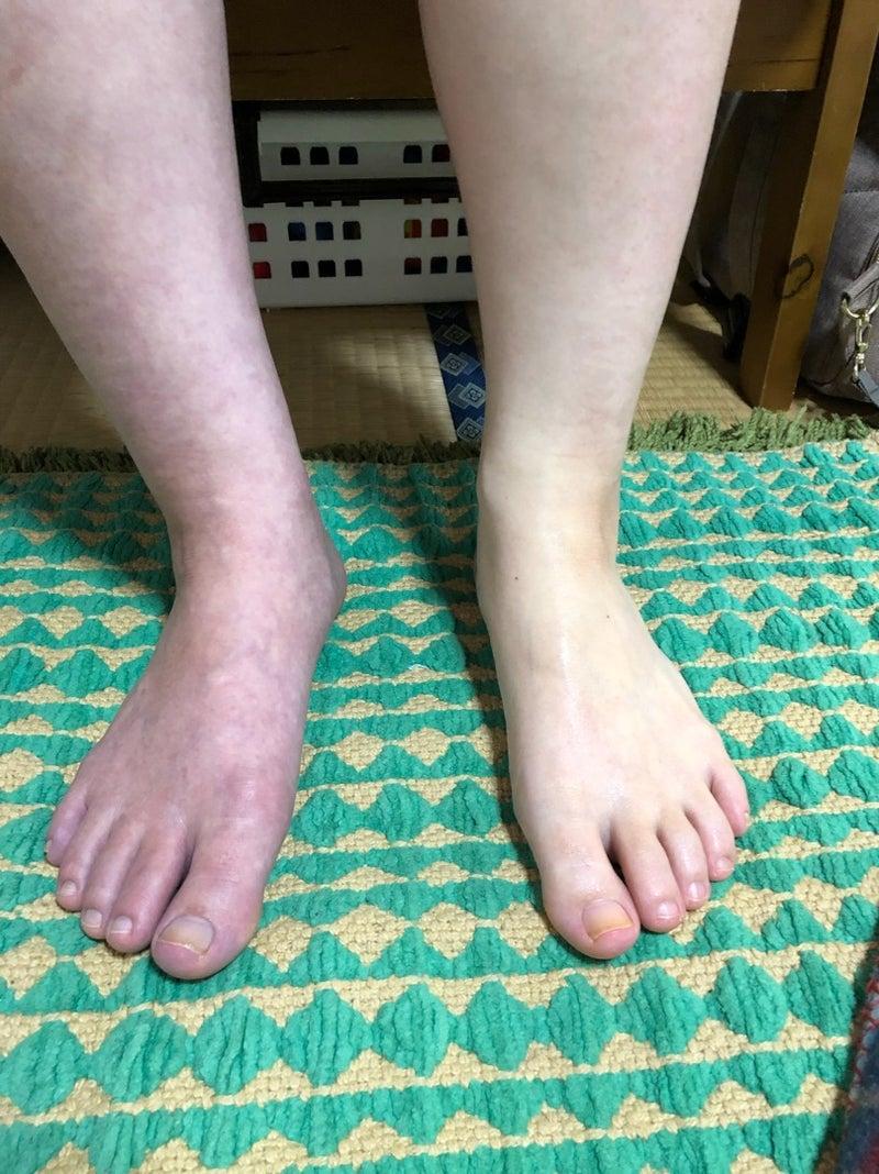 足 痛い 妊婦 の 裏