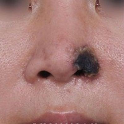 ヒアルロン酸の恐怖の記事に添付されている画像
