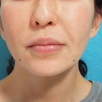 口角ボトックスのモニターの記事に添付されている画像