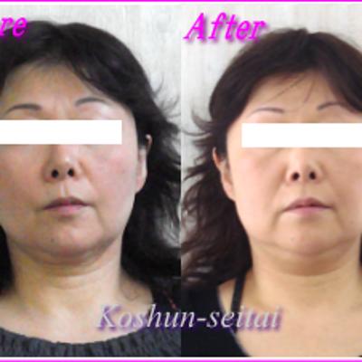 顔が真っすぐに改善中 /小顔矯正 途中経過の記事に添付されている画像