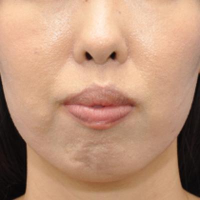あごがなく梅干ジワのお悩み注射治療モニター様2週間後の記事に添付されている画像