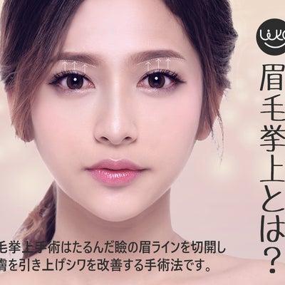 眉毛挙上についての記事に添付されている画像