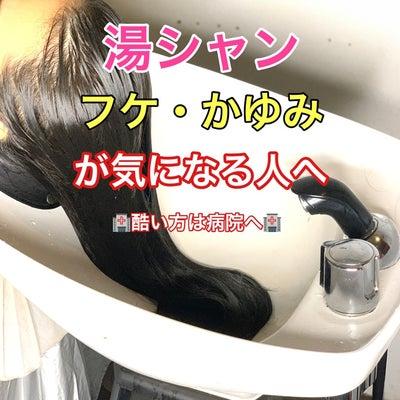 頭皮の乾燥対策!湯シャンとは?の記事に添付されている画像