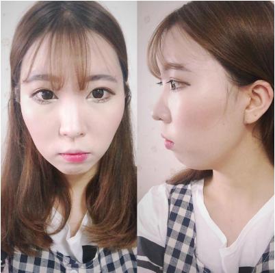 韓国顎整形