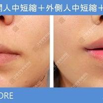 韓国美容整形ー鼻下ミニ切開人中短縮+外側人中短縮+口角挙上の記事に添付されている画像