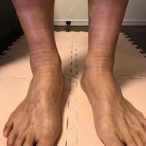 足のむくみ〜の記事に添付されている画像