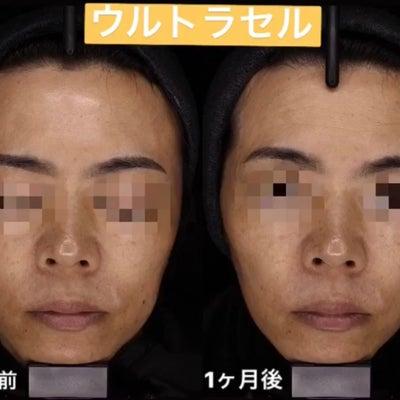 たるみをレーザーで改善〜大阪・心斎橋・WCLINIC〜の記事に添付されている画像