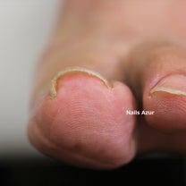 巻き爪でお悩みの方へ~B/Sブレイス巻き爪ケア~の記事に添付されている画像