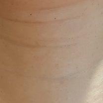 <ミョンドン皮膚科プロレークリニック>時間の年輪、首のしわ。年月を戻す方法の記事に添付されている画像