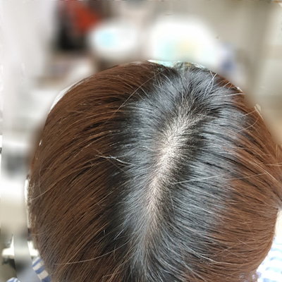 白髪対策の記事に添付されている画像