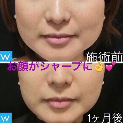 ほっそりとしたフェイスラインに~大阪・心斎橋・WCLINIC~の記事に添付されている画像