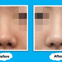 コノピ美容整形外科の【豚鼻整形術】の記事に添付されている画像