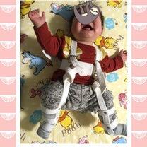 リーメン装着初日(生後6ヶ月)の記事に添付されている画像