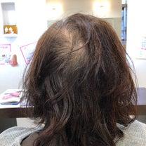 旋毛が気になるから…の記事に添付されている画像