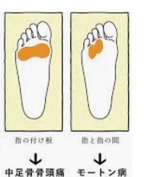 中足骨骨頭痛 中足骨骨頭痛で腫れが強い時はどうするの?