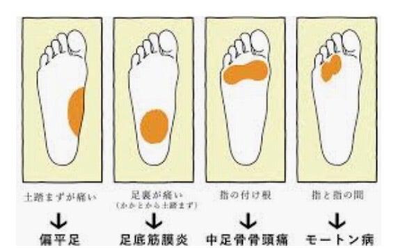 が 痛い 足 の 裏側