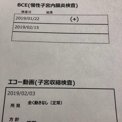リプロ東京 BCE単独再検査のもよう…の記事に添付されている画像