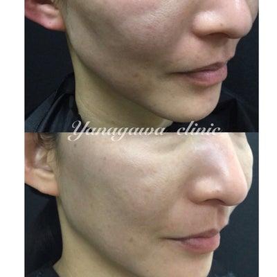 ヒアルロン酸注入 モニター症例の記事に添付されている画像