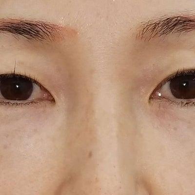 最新式切開美容施術・MD式(ミニマムダウンタイム式)眉下切開法の1例の記事に添付されている画像