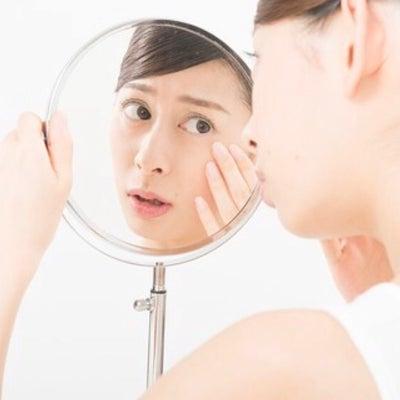 今年は。花粉で、肌トラブルが増えていますの記事に添付されている画像
