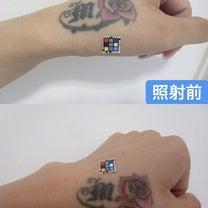 タトゥー除去・刺青(手)~大阪・心斎橋・WCLNIC~の記事に添付されている画像