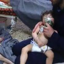 BBCプロデューサー「化学兵器攻撃犠牲者ビデオはでっちあげ」の記事に添付されている画像