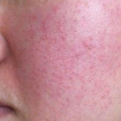 酒さ様皮膚炎の赤み改善の方法についての記事に添付されている画像