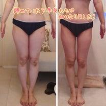 残りの人生を無駄にしない!とにかく脂肪もむくみも早くとりますよ!!の記事に添付されている画像