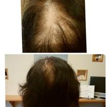 髪 地肌に優しい香草カラー~♬の記事に添付されている画像