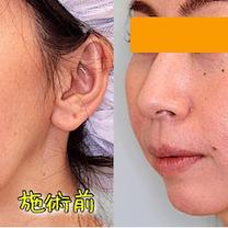 【症例写真】ほうれい線のヒアルロン酸(ジュビダームビスタ・ボリフトXC)の記事に添付されている画像