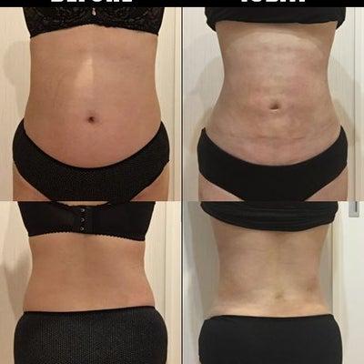 脂肪吸引(腹部・腰):15日目の記事に添付されている画像