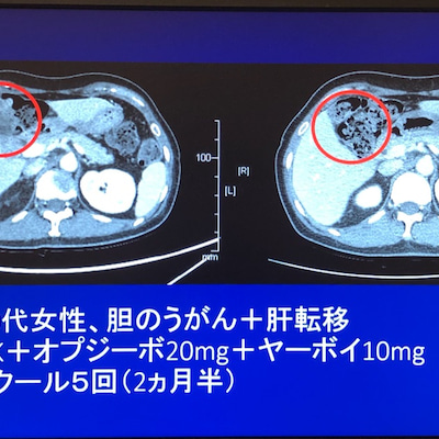 胆のうがん、肝転移消失。 このように免疫療法でがん治療できます。の記事に添付されている画像