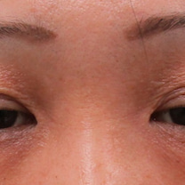 40代後半女性の『切らない眼瞼下垂治療』の記事に添付されている画像