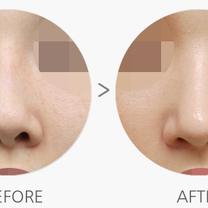 人生最後の鼻整形手術【鼻の再手術】の記事に添付されている画像