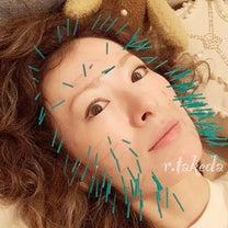 アラフォー美肌づくりの美容鍼の記事に添付されている画像